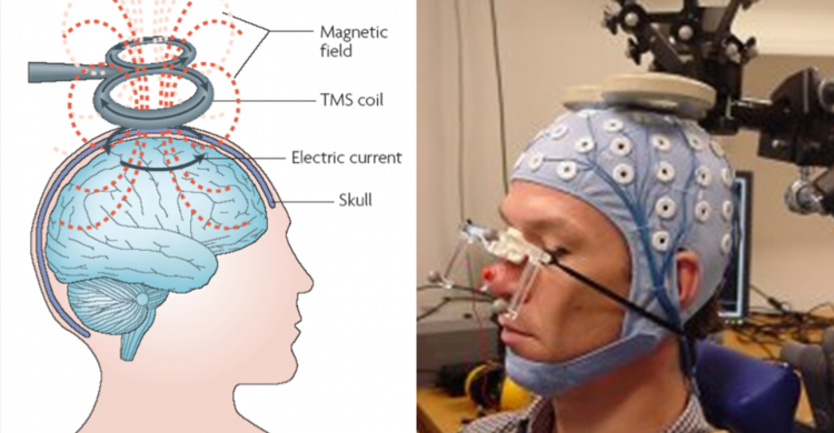 2014_TMS-EEG Cartoon & Picture-fra-nett_NY